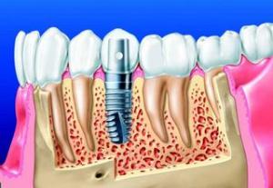 Schémas implant dentaire