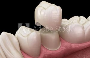 Dentisterie esthétique - couronne dentaire2