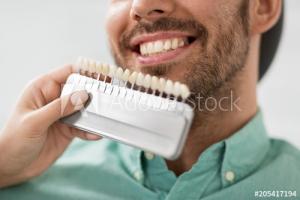Palette de couleurs couronne dentaire
